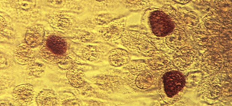 Microscopic image of Chlamydia trachomatis