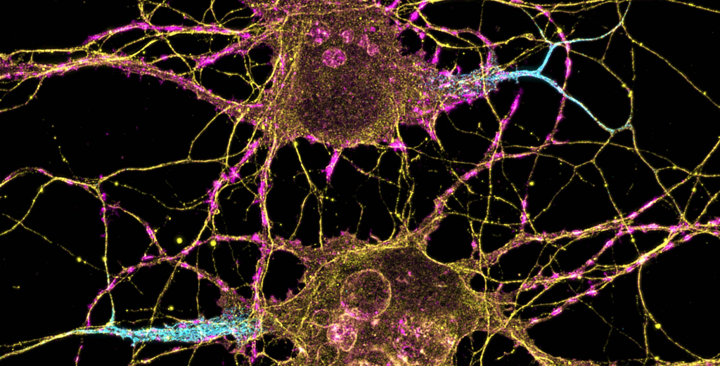 Neurons viewed under a microscope